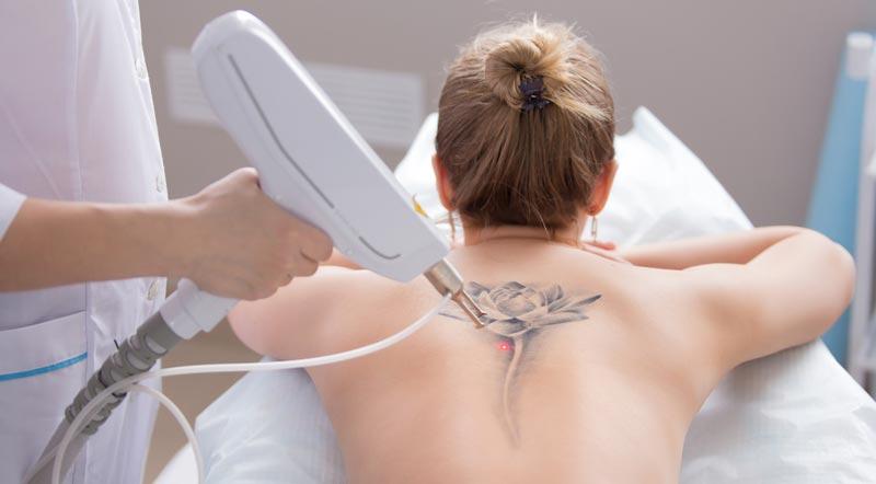 Аппарат для удаления сосудов и татуировок